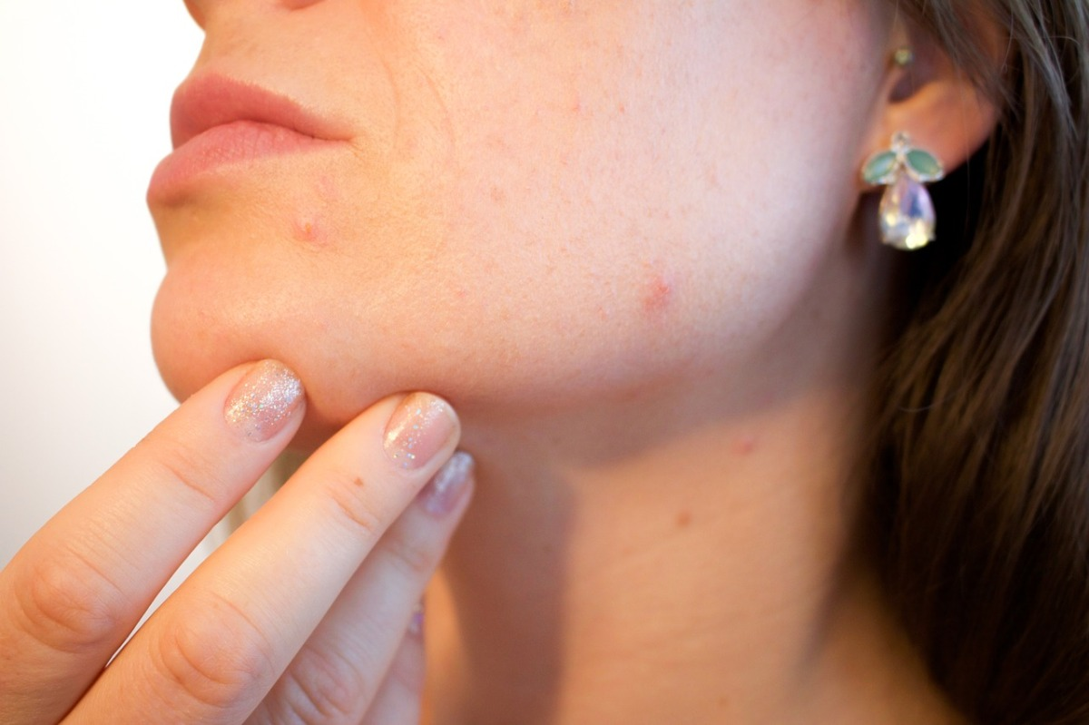 acti-labs products for bad acne adult skincare